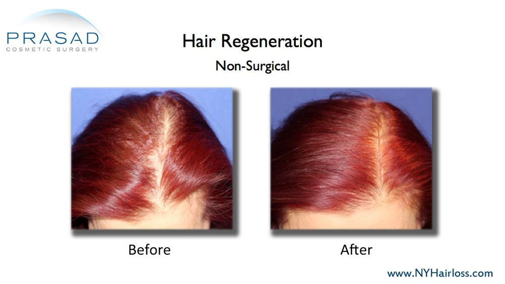 A female pattern hair loss patient from 2011 showing results after a single treatment of Dr. Prasad's Hair Regeneration ACell PRP treatment