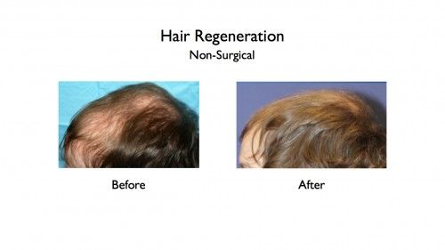 Hair Regeneration before and afters