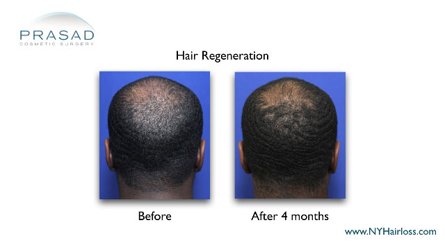 Hair Regeneration for African-American hairloss before and after