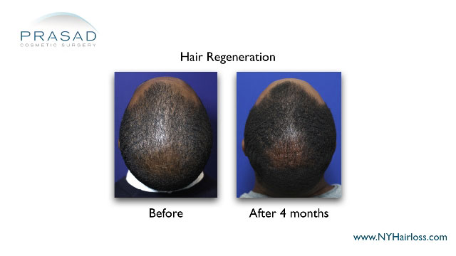 Hair Regeneration for African-American hairloss before and after Amiya Prasad MD