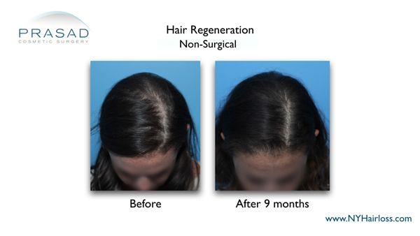 female hair loss after hair regeneration