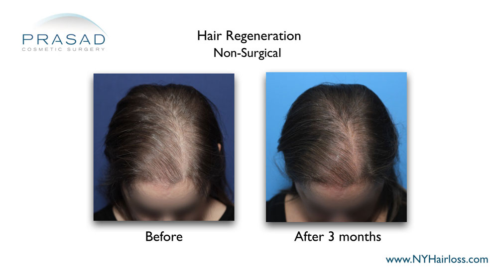 Hair Regeneration treatment on female patterned hair loss before and after 3 months