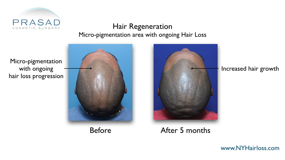 increased hair growth at the frontal hairline after hair regeneration treatment