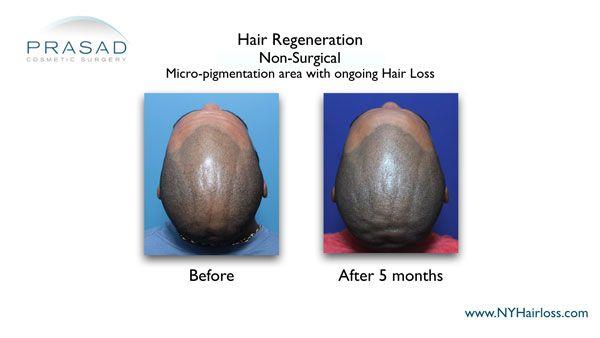 hair restoration for scalp
