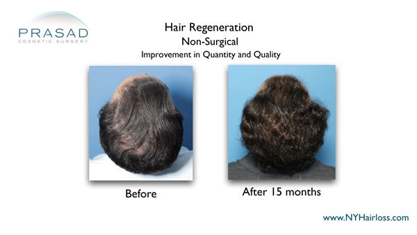before and after hair regeneration
