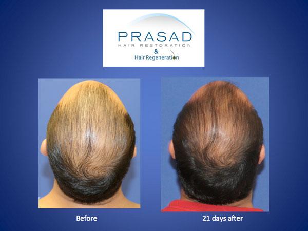 Hair Regeneration male 21 days