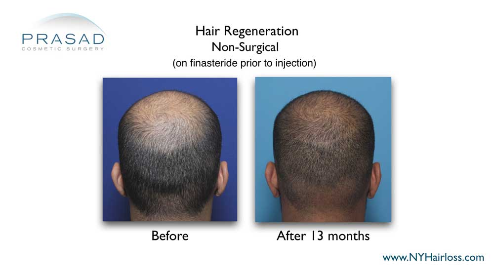 Hair Regeneration cannot replace finasteride for young men with high DHT-sensitivity, but the combination can make thicker hair growth and scalp coverage last longer