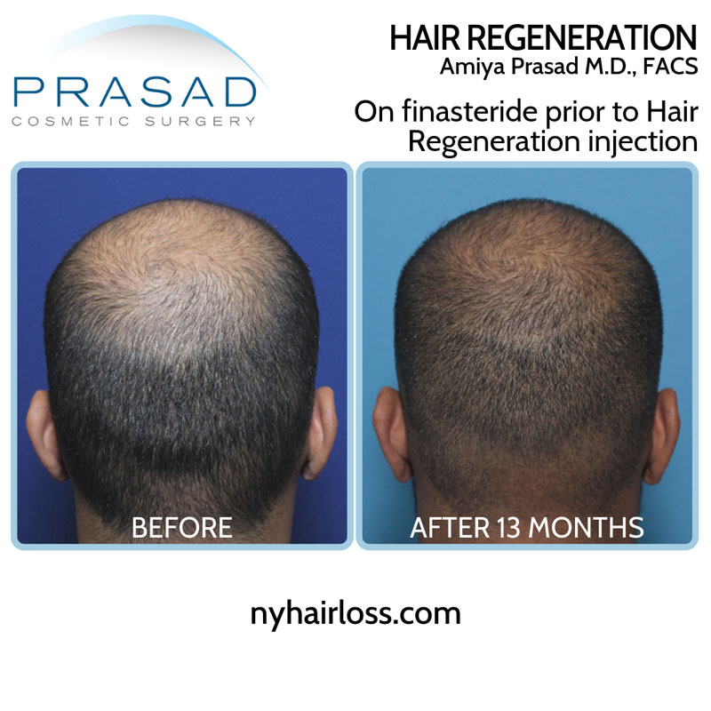 Young man with high-DHT-sensitivity showing results of finasteride alone, and finasteride with Hair Regeneration ACell PRP treatment