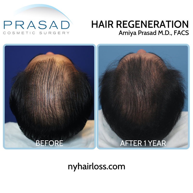 Hair Regeneration ACell PRP patient with advanced hair thinning