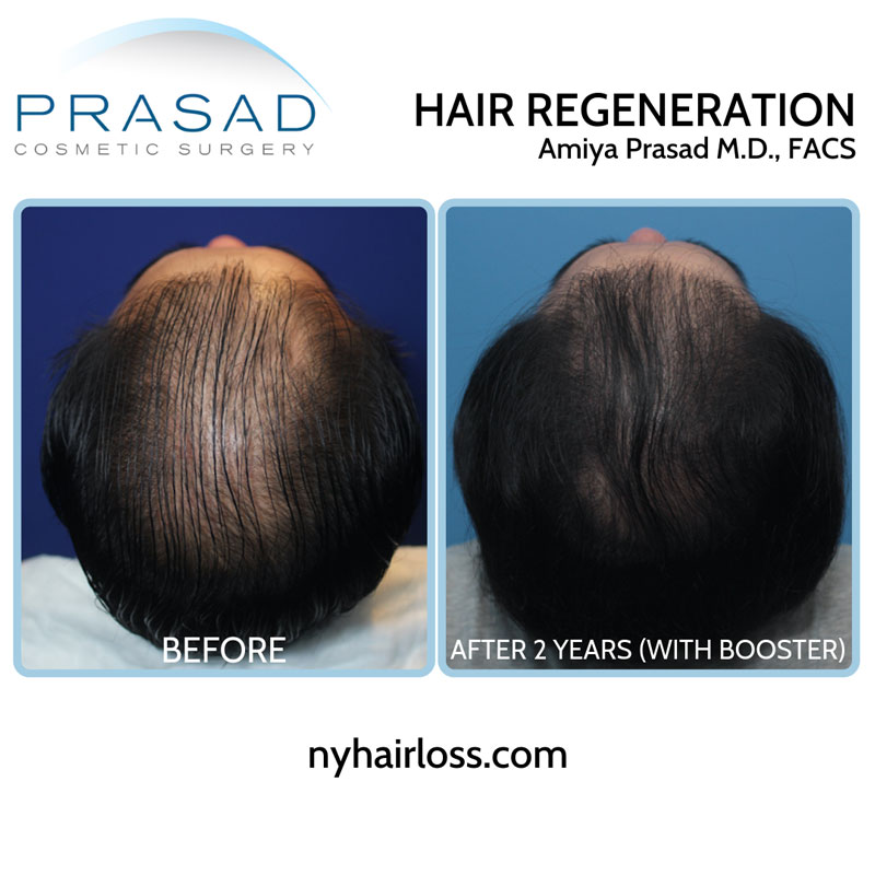 Hair Regeneration ACell PRP patient with advanced hair thinning received booster get significantly denser scalp coverage