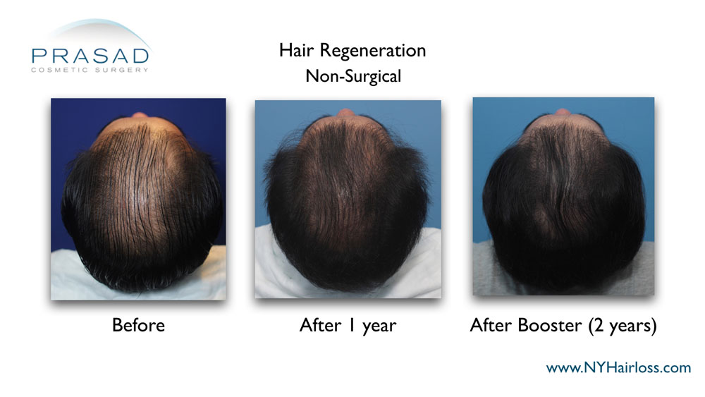 Hair Regeneration ACell PRP patient with advanced hair thinning received two treatments over a year apart to get significantly denser scalp coverage