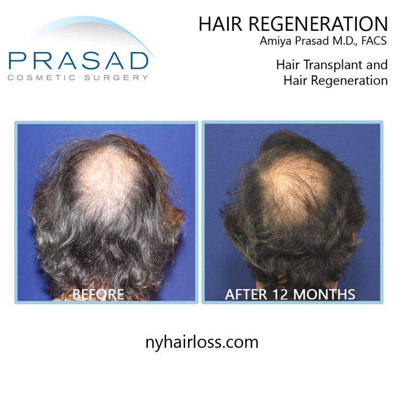 It's important to have an ACell PRP practitioner who had prior hair loss treatment experience, like Dr. Prasad performing hair transplants and prescribing finasteride