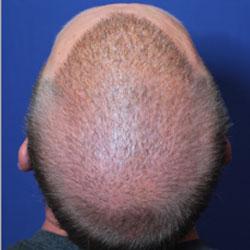 improving hair density after several hair transplants
