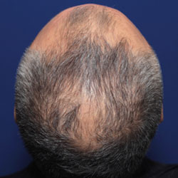 late onset hair loss treatment without Finasteride