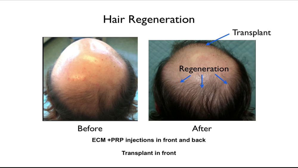 The Hair Regeneration treatment was discovered when Dr. Prasad used ACell to help heal transplanted hair grafts, and found that thinning native hair also grew thicker