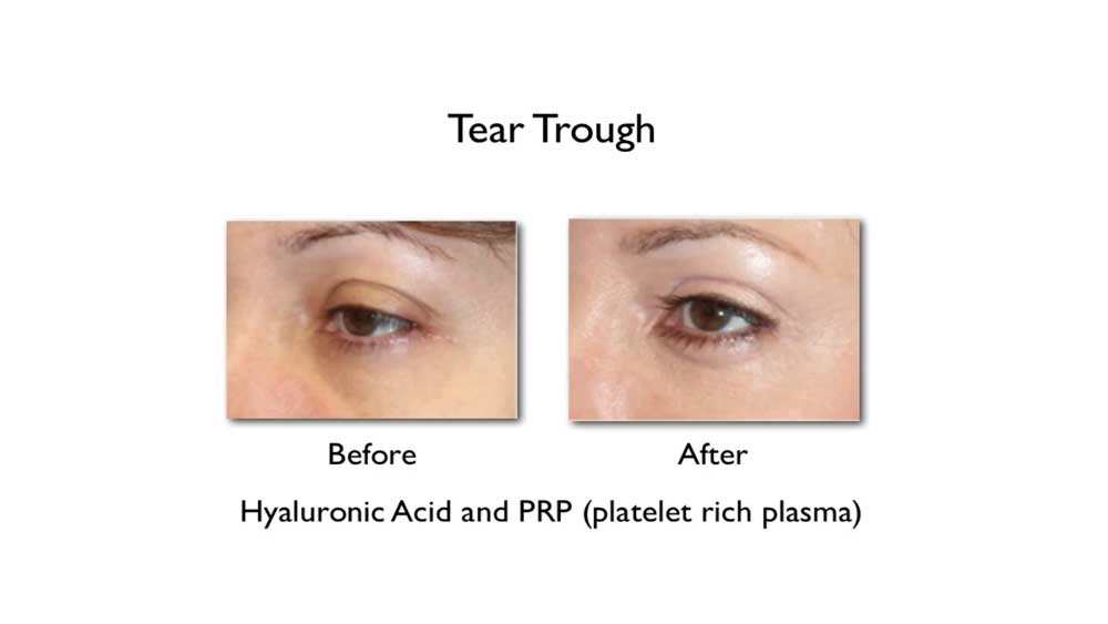 Dr. Amiya Prasad was one of the first cosmetic surgeons to adopt PRP in his practice for use in treating dark under eye circles, acne scars, and skin quality improvement