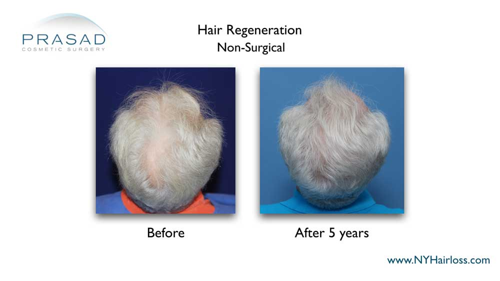 Male patient of Dr. Prasad's Hair Regeneration ACell PRP treatment, showing thicker hair and denser scalp coverage 5 years after a single treatment session