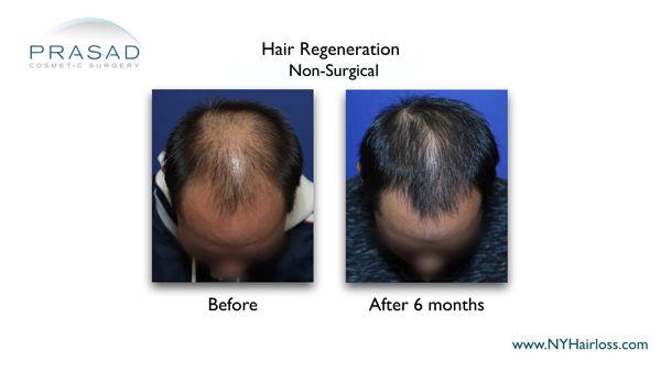 hair regeneration after 6 months