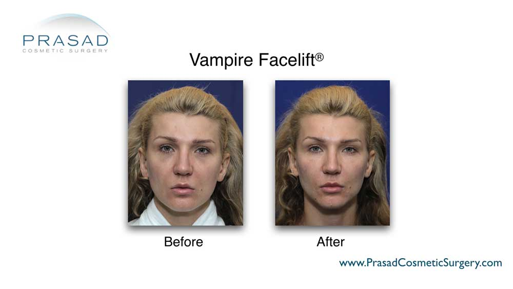 PRP helps in improving skin quality, by itself or combined with other modalities like cosmetic filler in treatments like the Vampire Facelift