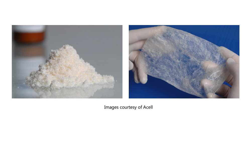 ACell's extracellular matrix comes in variations of two basic forms: powder and sheets. Powder used in injectable hair loss treatment is difficult to measure and dose