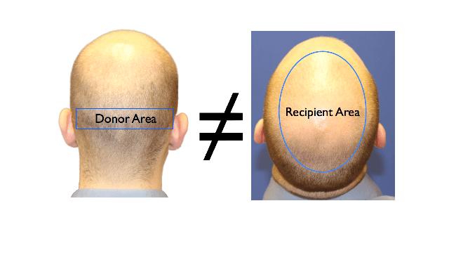 donor area and recipient area mismatch