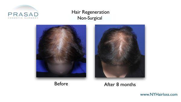 8 months after hair regeneration