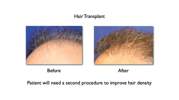 hair-density-after-1-hair-transplant
