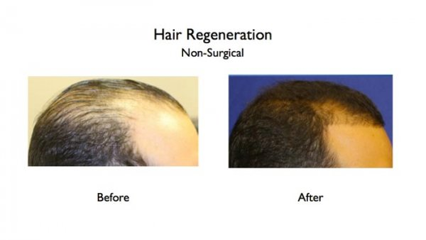 hair restoration treatment for hair loss