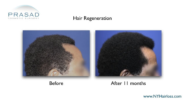 hairloss in African-American man before-and-after hair regeneration treatment performed by Dr Amiya Prasad right temple