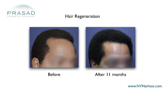 hairloss in African-American man before and after hair regeneration