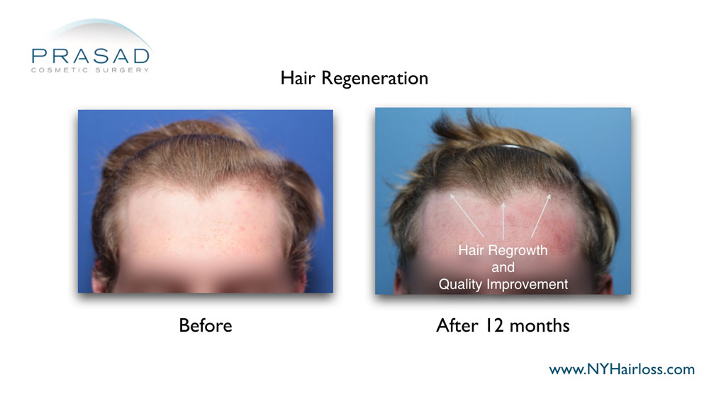 improved thickness and quality of hair after hair regeneration treatment