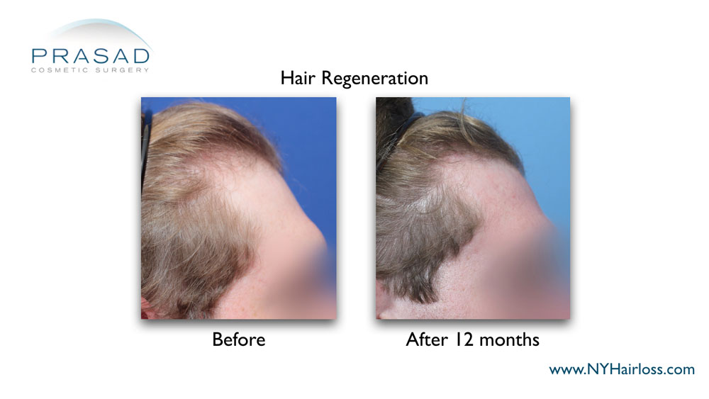 visibly thicker and darker hair on the temples 12 months after the treatment