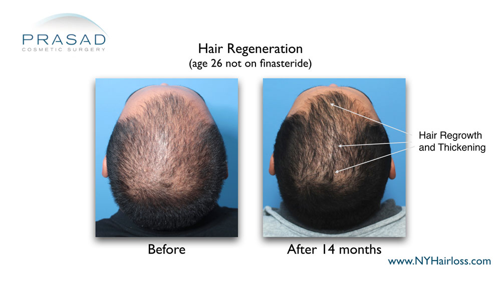 significant hair growth achieved in one hair regeneration treatment