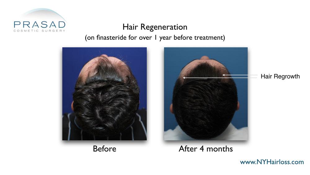 hair density improved after hair regeneration treatment