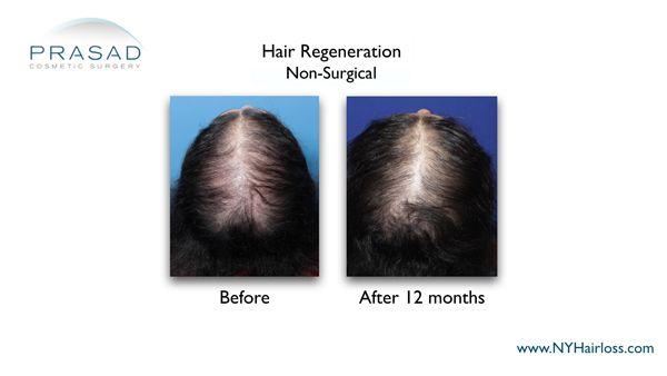 hair regeneration for female patient