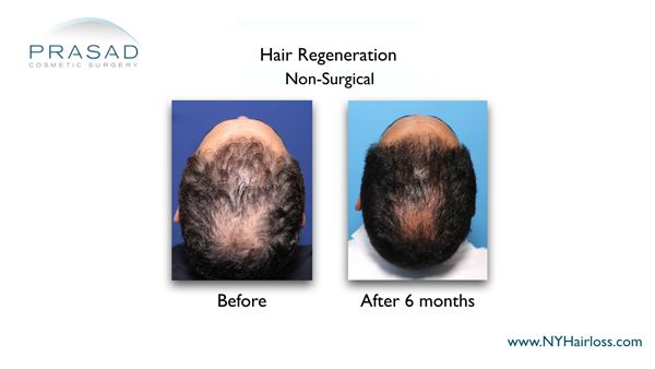 male in 40s after hair regeneration