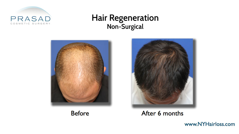 Hair Regeneration PRP ACell before and after pictures have been stolen by other medical practices claiming them as their own, even featured on TV