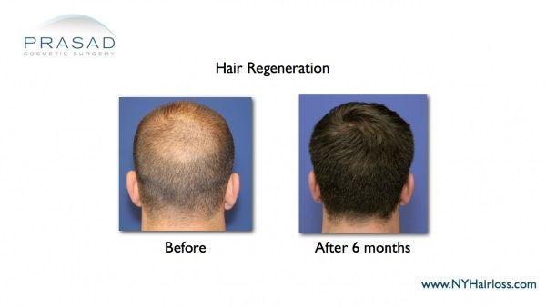 hair transplant nyc-hair regrowth