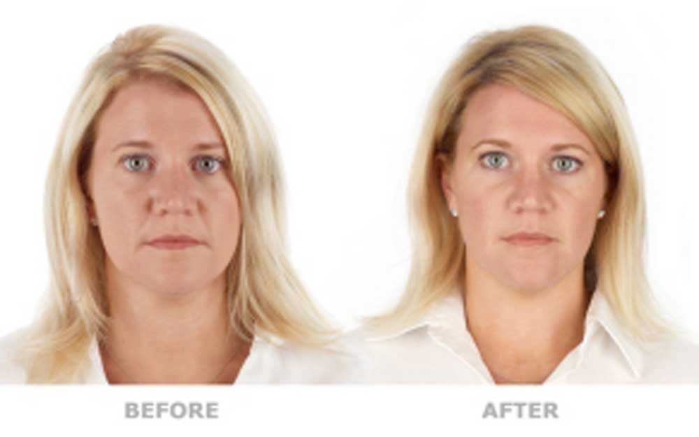 PRP can improve skin quality to make it look noticeably younger and more vibrant, without surgery or downtime