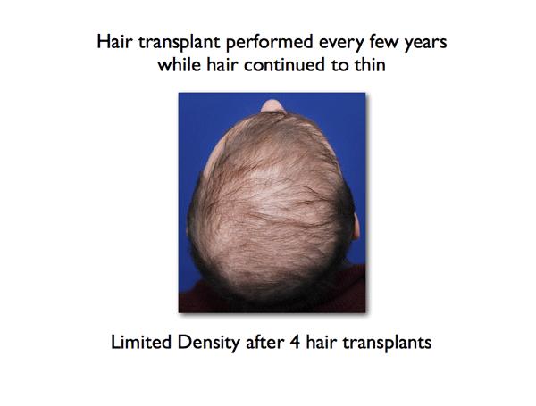 Hair Transplant Limitations | NY Hair Loss