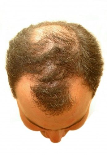 top of man's head with thinning hair